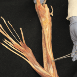 Fascial Dissection