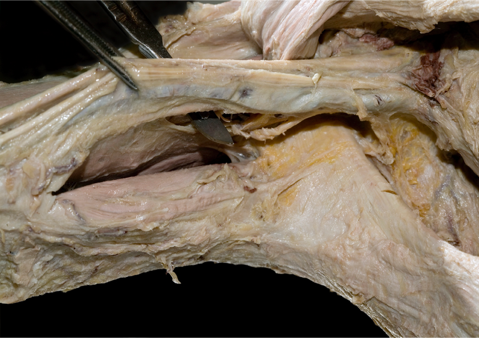 Brachial Plexus Dissection