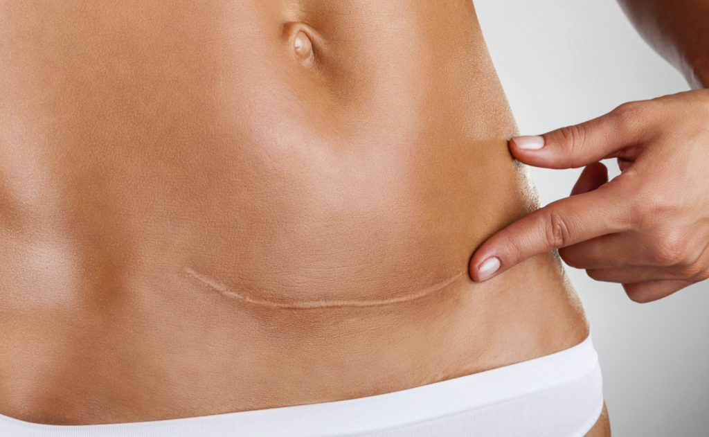 C-Section Horizontal Scar