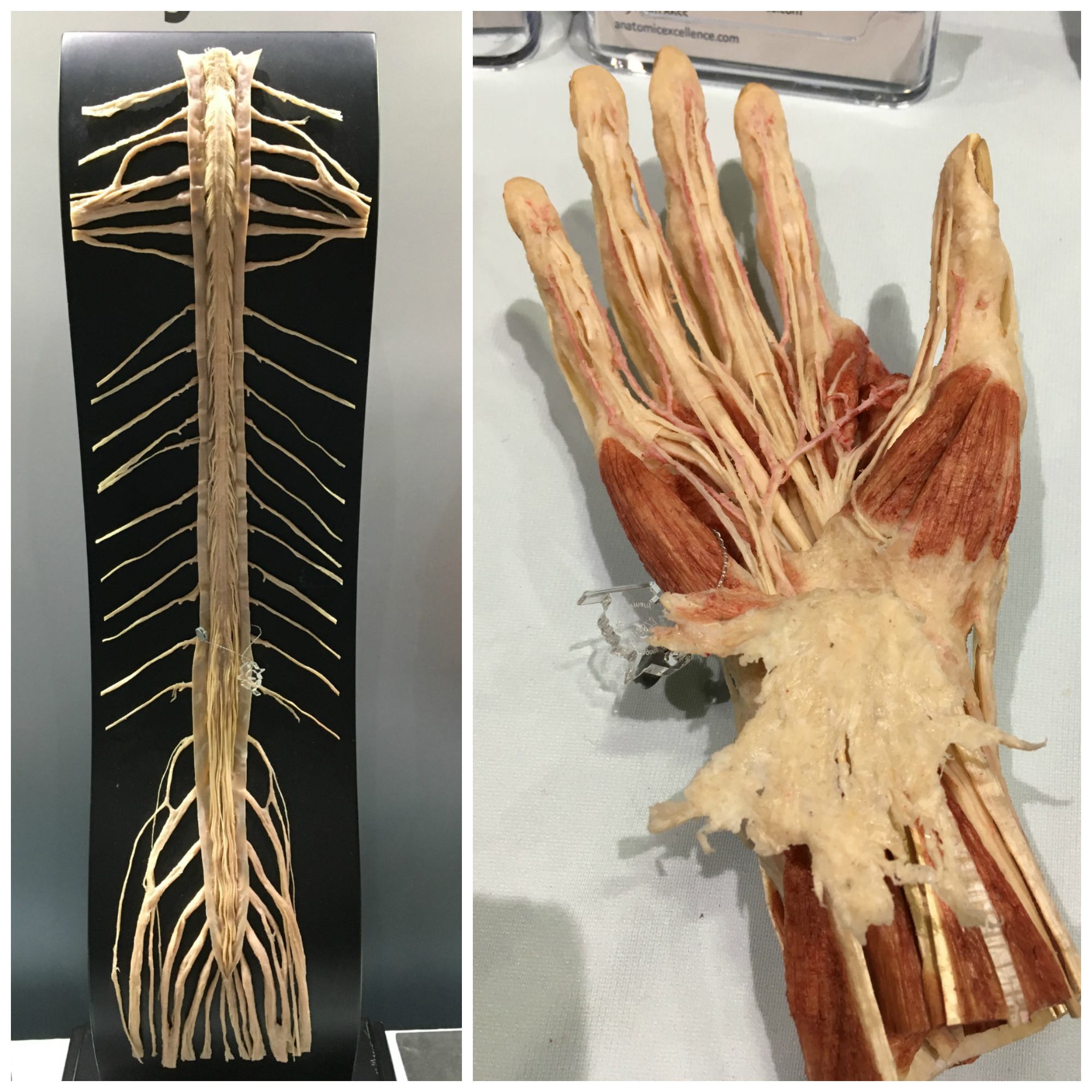 Anatomy Trains Represented at American Association of Anatomists ...