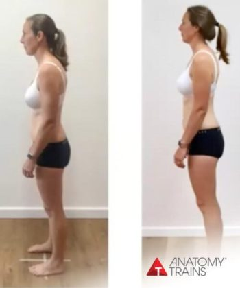 Before-and-after picture of a woman achieving better balanced and aligned posture.